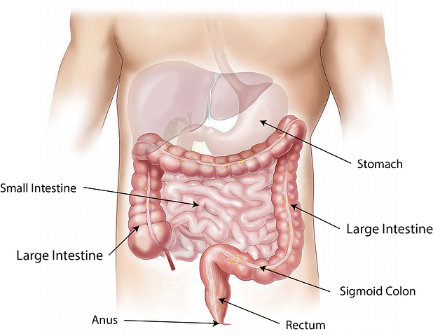 Nursing Diagnosis, Care Plans, & Interventions for Diverticulitis- A Student's Guide