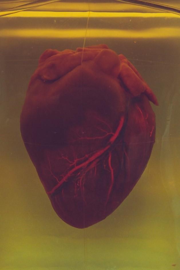 Nursing Intervention for Heart Failure