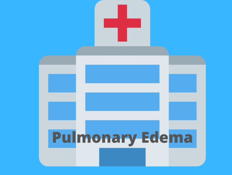 Nursing Diagnosis, Care Plan, and Interventions for Pulmonary Edema-A Student's Guide