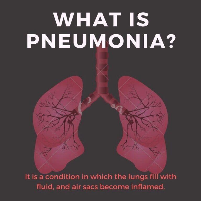 Nursing Care Plan for Pneumonia- A Student's Guide